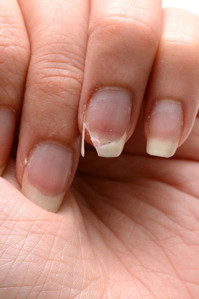 The one thing you should never do to a broken nail! – Beyoutiful ...