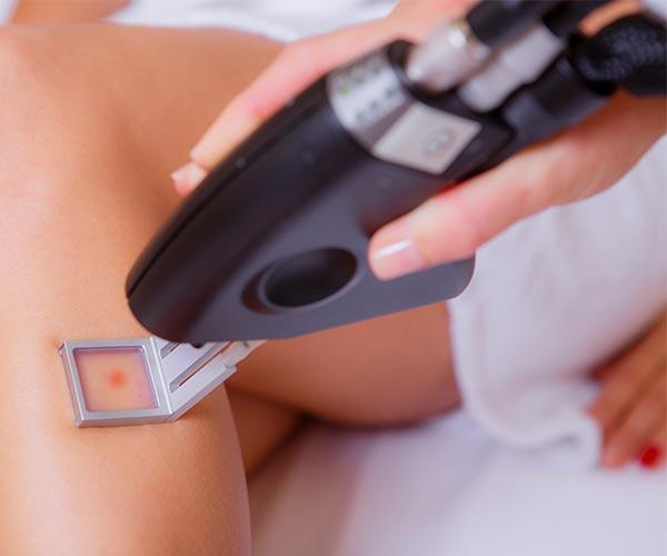 funcționare laser cu viziune contra efectul hipertensiunii asupra vederii