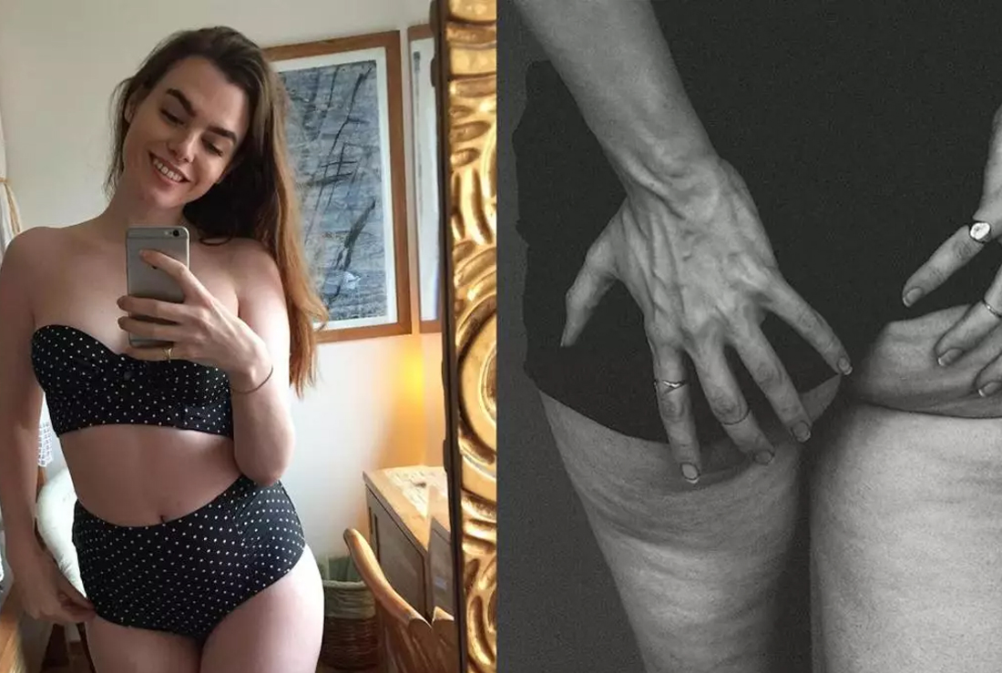 This model showed a photo of its cellulite for a very important reason