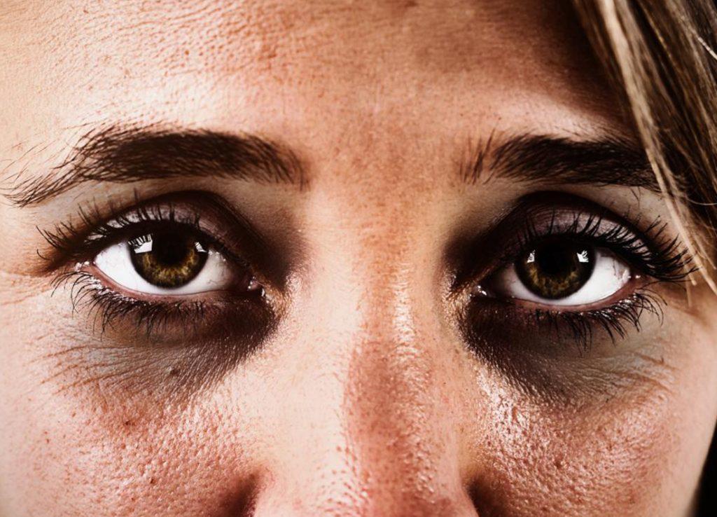 sunken eyes meaning - 1024×738